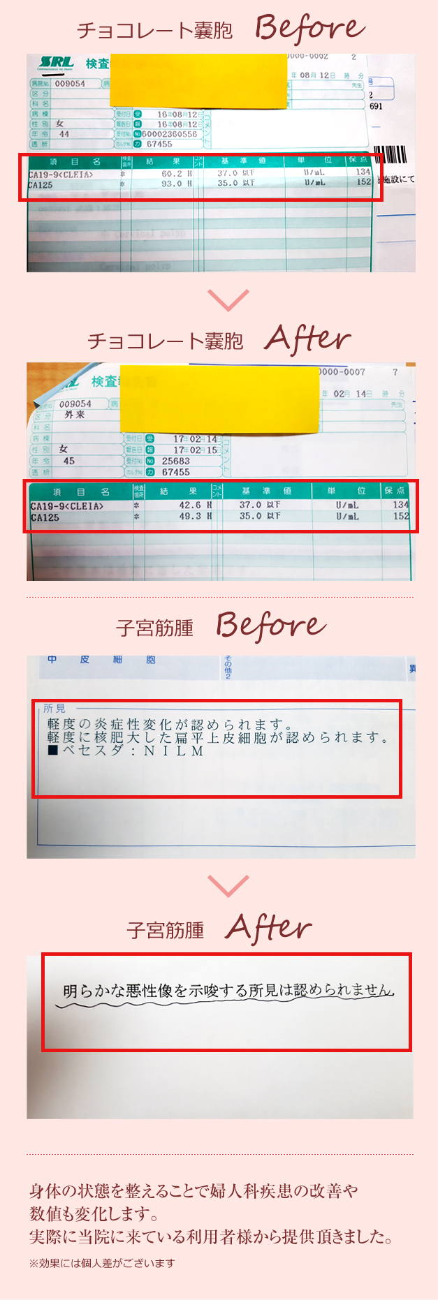 鍼灸でチョコレート嚢胞と子宮筋腫が改善された1例