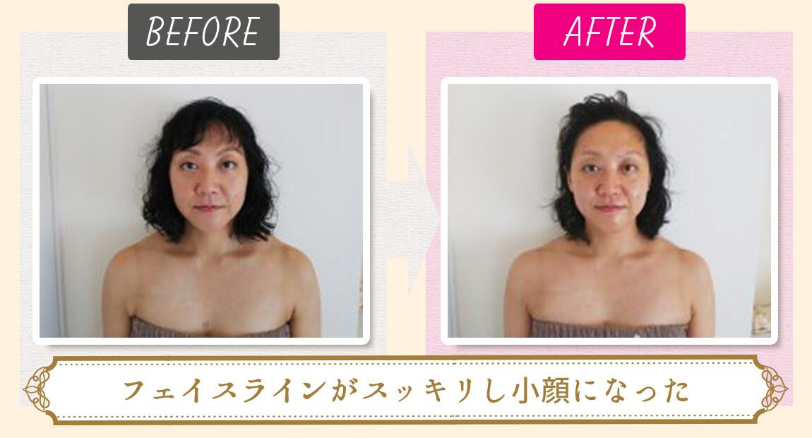 美容鍼ビフォーアフター(フェイスラインがスッキリし小顔になった)