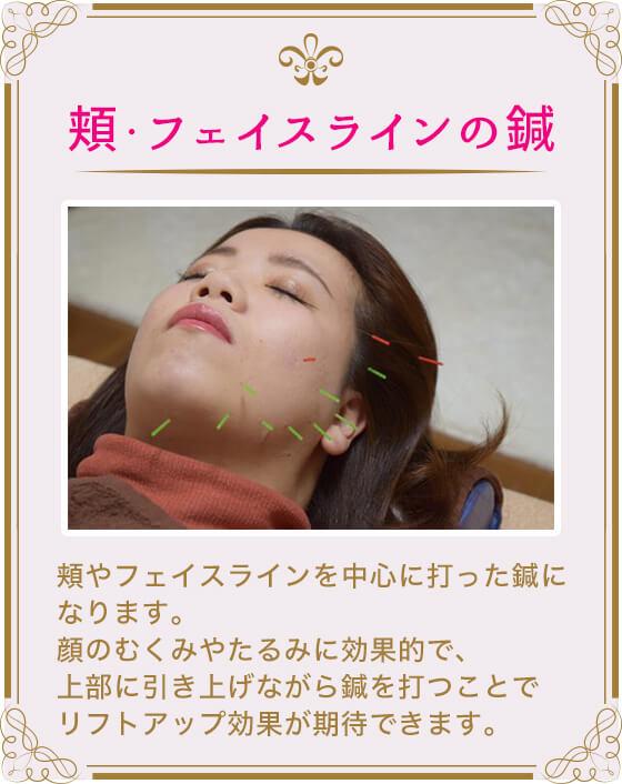 (頬・フェイスラインの鍼)頬やフェイスラインを中心に打った鍼になります。顔のむくみやたるみに効果的で、上部に引き上げながら鍼を打つことでリフトアップ効果が期待できます。