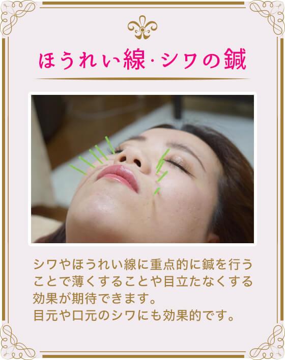 (ほうれい線・シワの鍼)シワやほうれい線に重点的に鍼を行うことで薄くすることや目立たなくする効果が期待できます。目元や口元のシワにも効果的です。