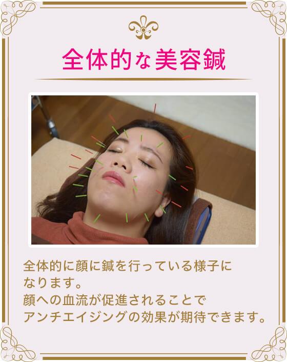 (全体的な美容鍼)全体的に顔に鍼を行っている様子になります。顔への血流が促進されることでアンチエイジングの効果が期待できます。