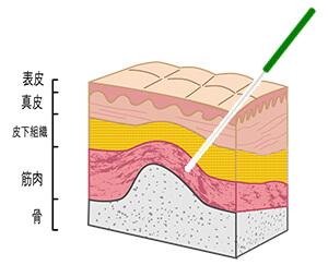 皮膚の構造と鍼