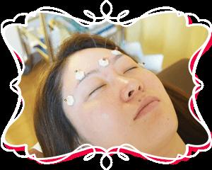 美容灸の施術写真
