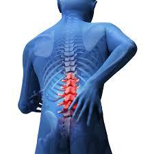 腰痛とヘルニア