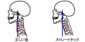 ストレートネックタイプの肩こり
