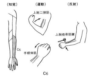 頚椎ヘルニアC6