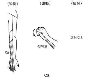 頚椎ヘルニアC8