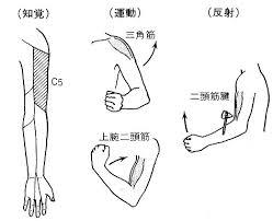 頚椎ヘルニアC5
