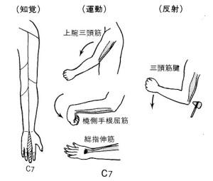 頚椎ヘルニアC7
