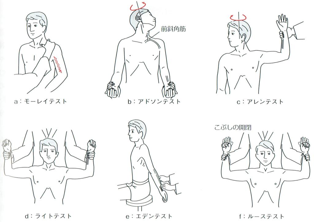 胸郭出口症候群の検査方法