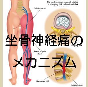 坐骨神経痛のメカニズム