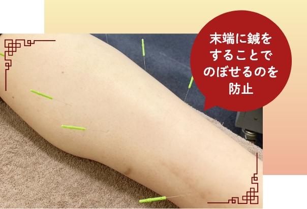 末端に鍼をすることでのぼせるのを防止